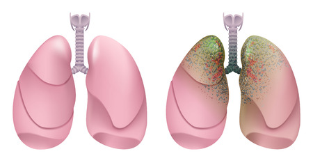 Healthy human lungs. Respiratory system. Lung, larynx and trachea of healthy person. Respiratory system smoker. Lung cancer. Isolated on white illustration Illustration