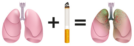 Healthy lungs plus cigarette result of lung cancer. Harm of smoking. Illustration in vector format