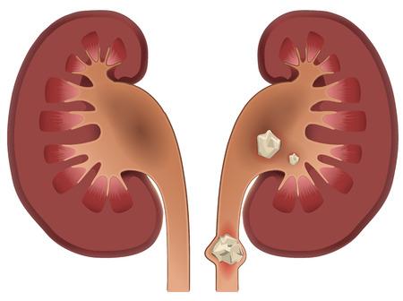 Nephrolithiasis kidney stones disease. Vector medical illustration isolated on white