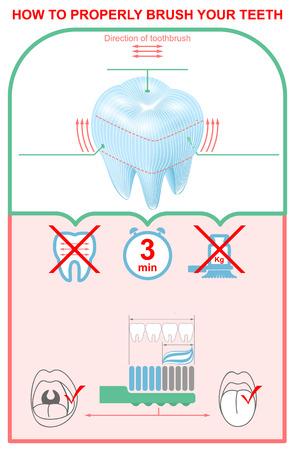 Comment bien se brosser les dents. Infographie de l'éducation infographie. Illustration vectorielle Banque d'images - 84877979