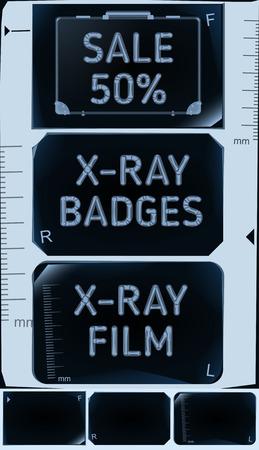 roentgen: X-ray banners. Roentgen badges set. Sale 50%. Vector illustration
