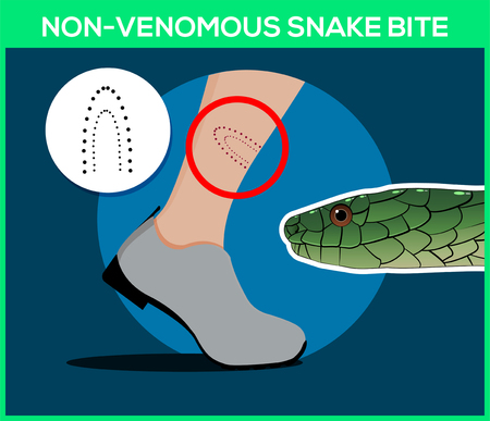 Non-venomous snake bite in the leg. Snakebite. Beware of snakes. Flat vector illustrations