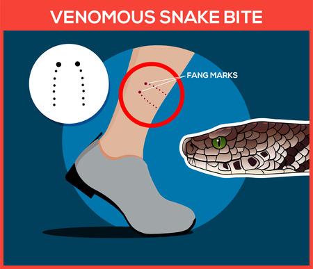脚で毒ヘビ咬傷。蛇にかまれました。ヘビの注意してください。フラット ベクトル イラスト