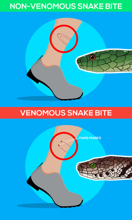 Venomous and non venomous snake bite in the leg. Snakebite. Beware of snakes. Flat vector illustrations Illustration