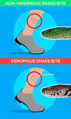 Venomous and non venomous snake bite in the leg. Snakebite. Beware of snakes. Flat vector illustrations Ilustrace