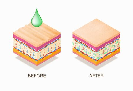 Anti-aging concept with before and after beauty treatment. Good example of how it works cosmetic filler or Dermal fillers as a cream or injection. Vector illustration skin structure.  Ilustração