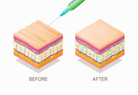 Anti-aging concept with before and after beauty treatment. Good example of how it works cosmetic filler or Dermal fillers as a cream or injection. Vector illustration skin structure.  Illusztráció