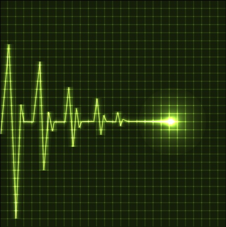 elektrokardiogramm: Abstrakt Herz schl�gt kardiogramm Illustration - vector