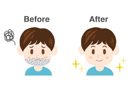 ひげの悩み  イラスト・ベクター素材