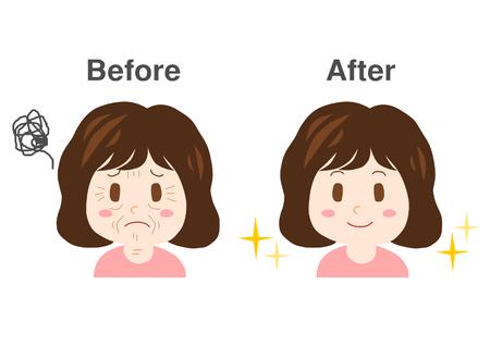 Trouble of Wrinkles Stock Illustratie