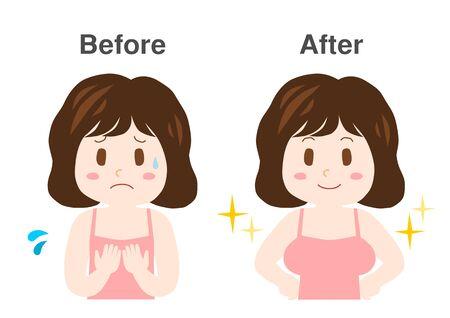 Breast enhancement