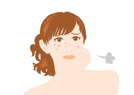 autocuidado: Problemas de acn�