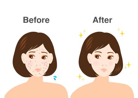 Problemas de acné