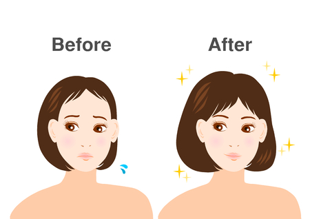 Trouble of thinning hair