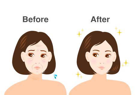 Trouble of Wrinkles Illustration