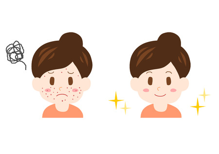 Trouble of pimple (woman)