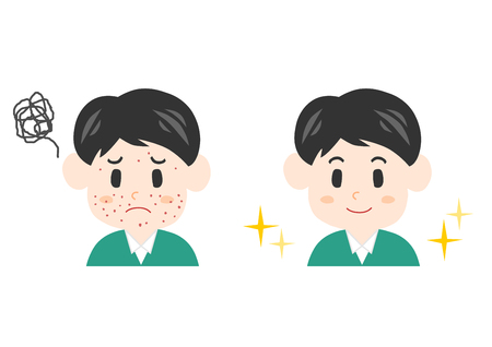 Illustration of a man having trouble with pimple.