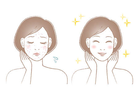 Women's beauty illustration. Trouble of pimple, spots and freckles. White background. vector illustration. 矢量图像