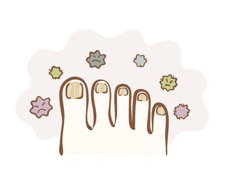 Illustration of ringworm on the nail Illustration