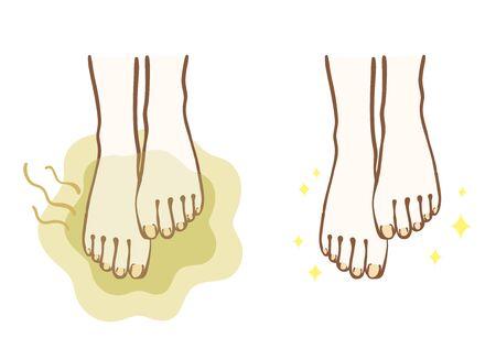 Stinky feet and beautiful feet