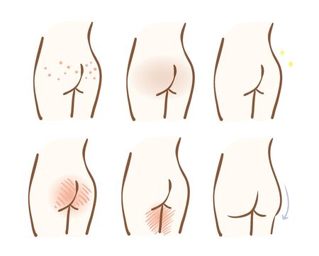 Illustration of skin problems of hips