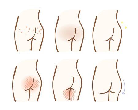 Illustration of skin problems of hips