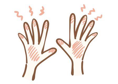 Illustration of injured hand 스톡 콘텐츠 - 130325298
