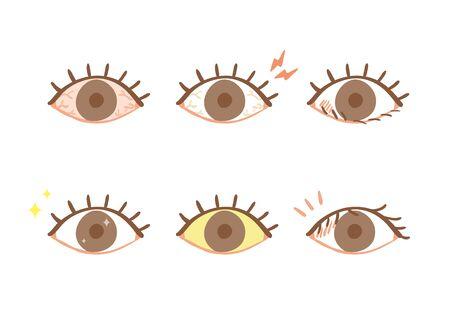 Eye disease symptoms illustration set Stock Illustratie