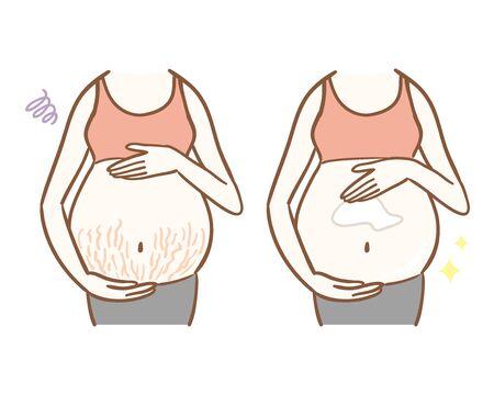 Femmes avec ligne de grossesse et femmes appliquant une crème pour éviter la ligne de grossesse.