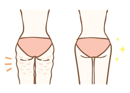 Before and after cellulite removal Иллюстрация
