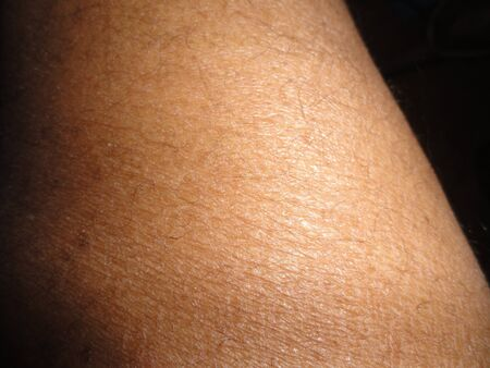 Human skin on a person of color  photo