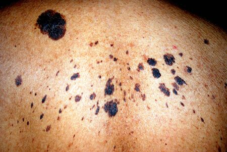 lesion: Moles on the back of a man