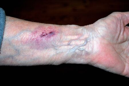 bruised: Bruised arm of a female senior who fell down.