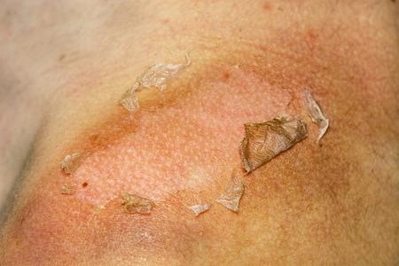 Sunburned peeling on back body a girl Foto de archivo