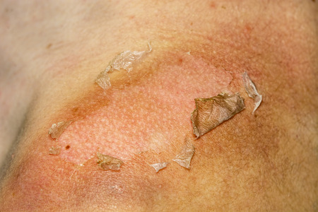 Sunburned peeling on back body a girl Standard-Bild