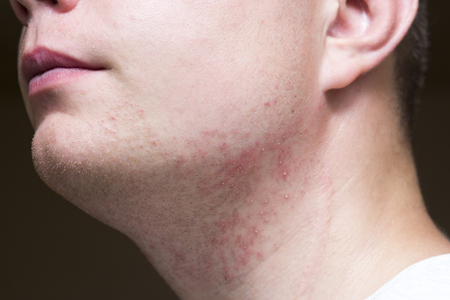 Severe irritation after shaving on the neck of a man, close-up