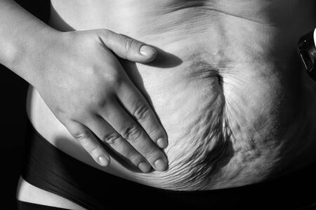 Woman smears nutritious cream sagging flabby belly with stretch marks, close-up, black and white photo. Banco de Imagens