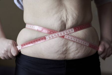 A woman wrapped a meter around a fat belly with stretch marks, topic of losing excess weight, diet and stress.