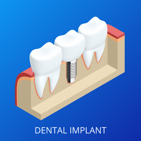 dentures: Isometric Tooth human implant. Dental concept. Human teeth or dentures. 3d illustration Isolated. Realistic vector illustration