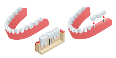 Isometric Tooth human implant. Dental concept. Human teeth or dentures. 3d illustration Isolated on white Realistic vector illustration Illustration