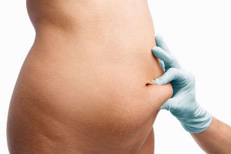 pinching: Female mid section pinched by doctor hand before liposuction over white background