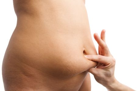 pinching: Hand pinching fat on female belly, an obese issue.