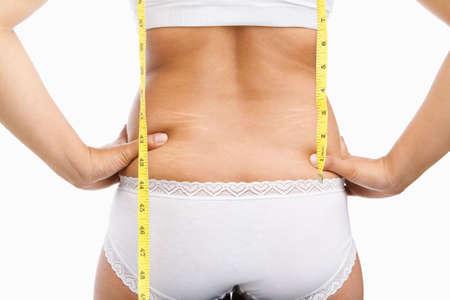 back of woman: Mujer con cinta de celulitis y mesuring en bajo desgaste sobre fondo blanco