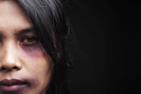 Domestic violence victim, a young Asian woman being hurt Stock Photo - 5836840