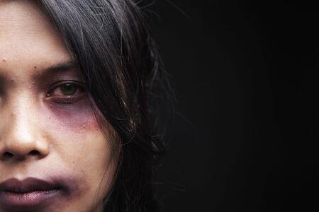 violencia: V�ctima de violencia dom�stica, una joven mujer asi�tica ser herido Foto de archivo
