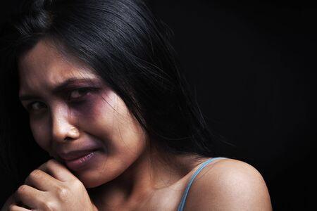 violencia intrafamiliar: V�ctima de violencia dom�stica, una joven mujer asi�tica ser herido Foto de archivo