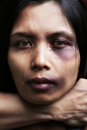 violencia intrafamiliar: Mujer que se chocked y el da�o, el concepto de violencia dom�stica Foto de archivo