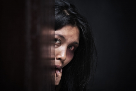 Injured woman hiding in dark, concept for domestic violence Stock Photo - 5836868