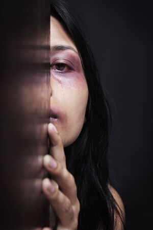 Injured woman hiding in dark, concept for domestic violence Stock Photo - 6612044