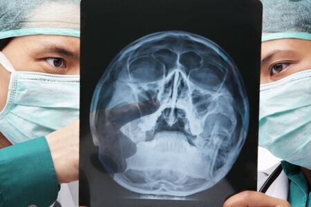 Two Asian surgeon discuss over skeleton roentgen between them photo